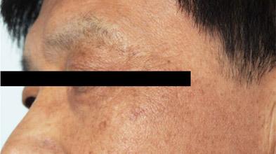 유캔비성형외과피부과의 Lunar-N 고주파
